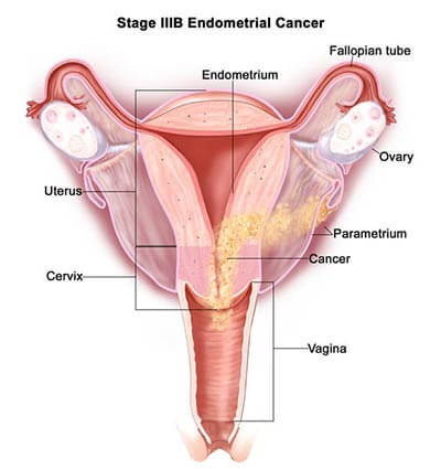 Endometriosis-stage-3