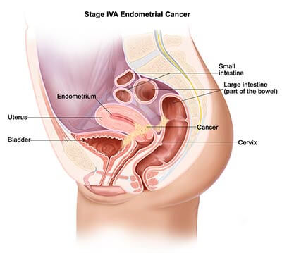 Endometriosis stage 4