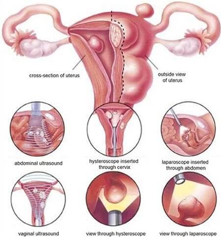 Hysteroscopic Myomectomy surgery