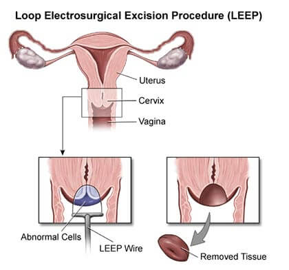 Loop Electrosurgical Excision Procedure (LEEP)